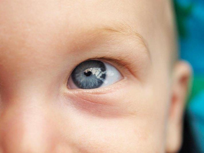 malattie dell'occhio nei bambini