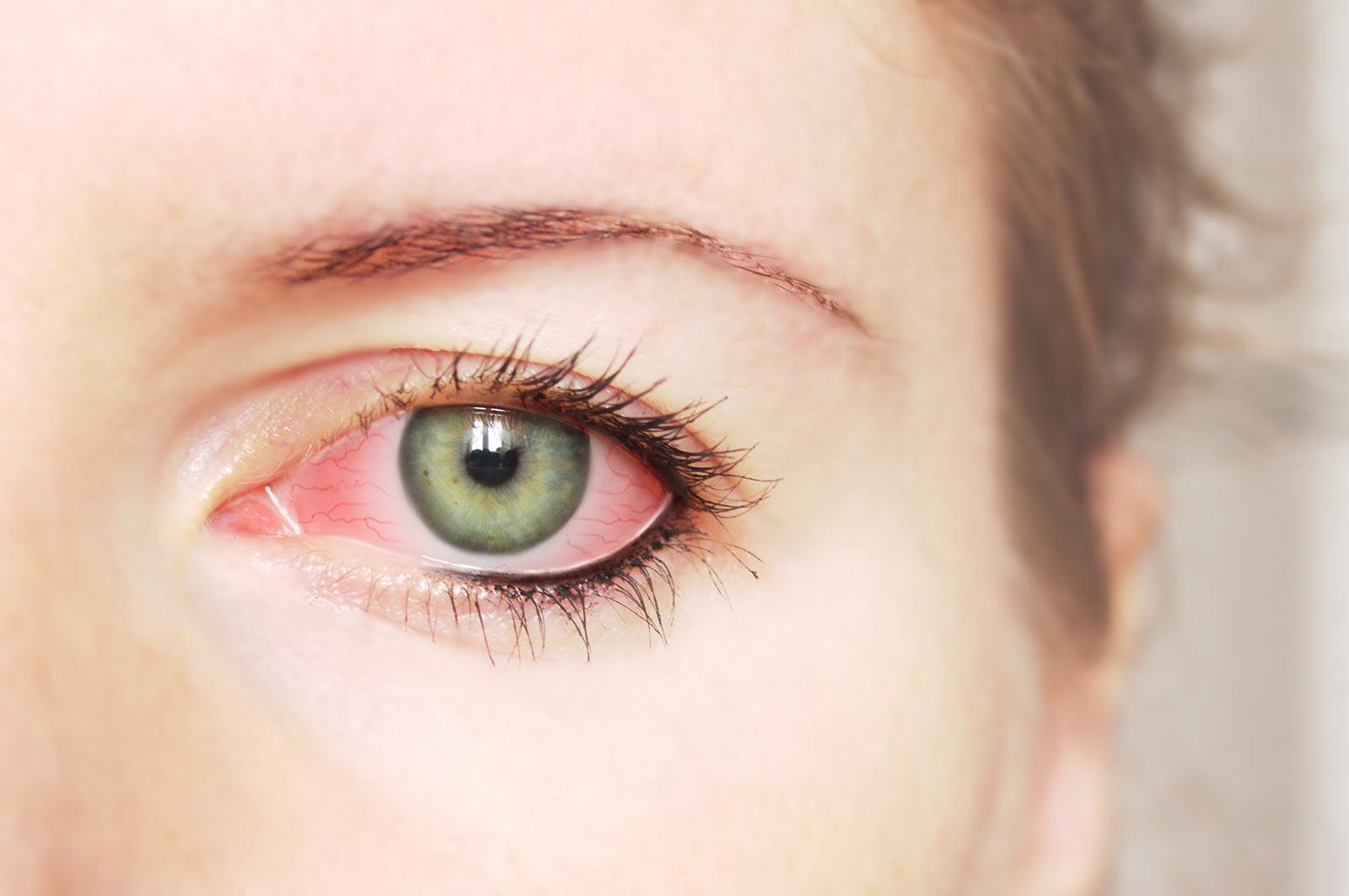 occhi rossi e gonfi