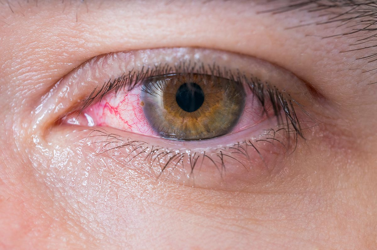 occhi-sembrano-sanguinare