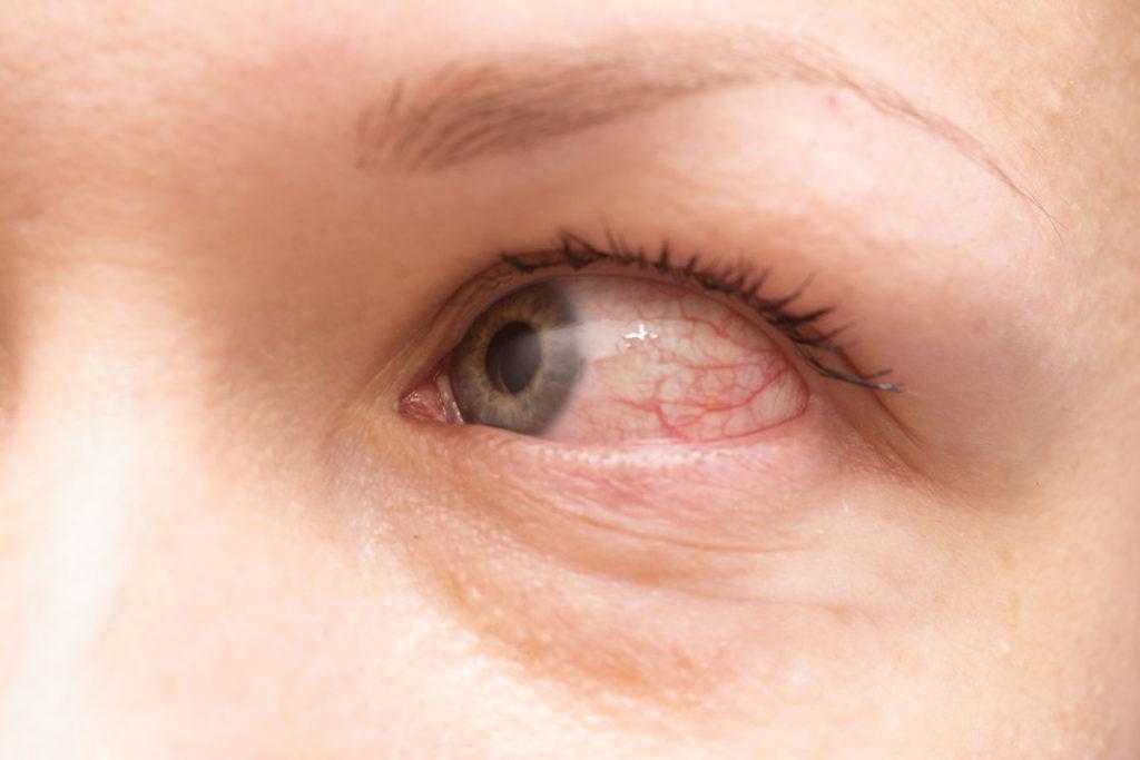 occhio rosso dopo aver dormito con le lenti