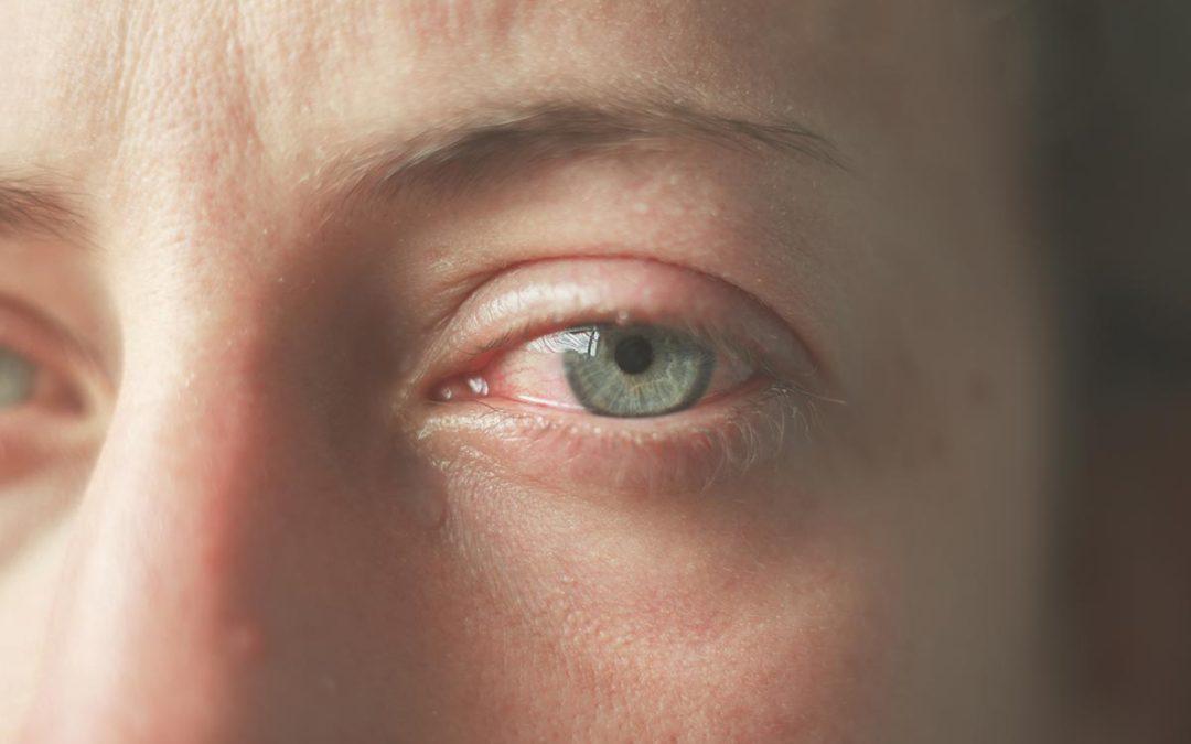 Cheratite: non confonderla con una semplice infiammazione dell'occhio