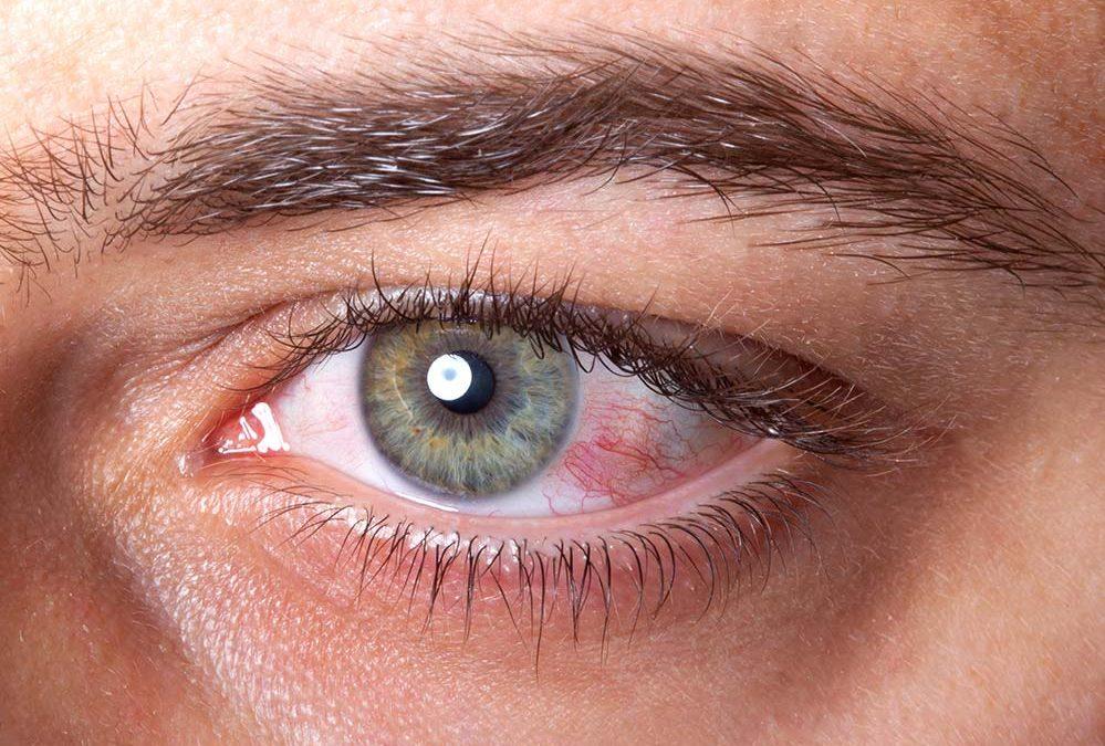 Sensazione di sabbia negli occhi: Il primo sintomo della congiuntivite