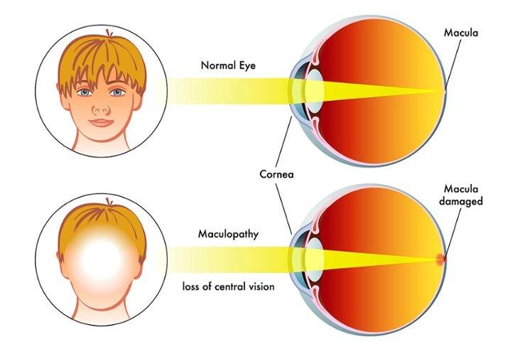 malattie dell'occhio