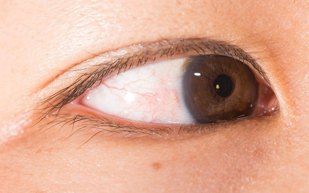 Ti sei accorto di avere una macchia gialla/bianca nell'occhio?
