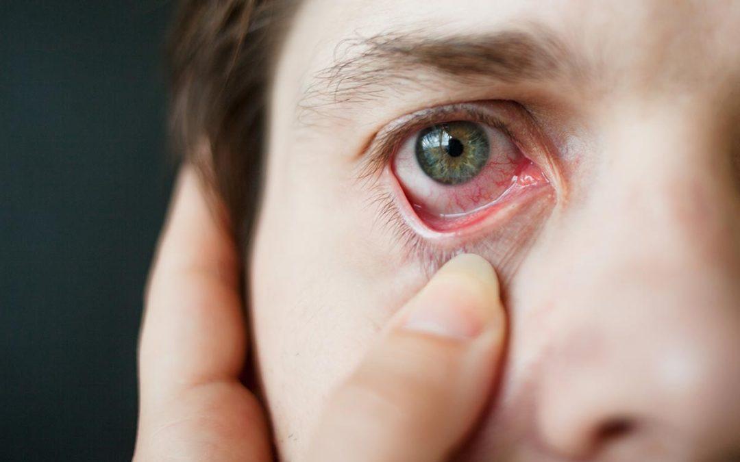 Occhi secchi? Potrebbero derivare da malattie autoimmuni dell'occhio