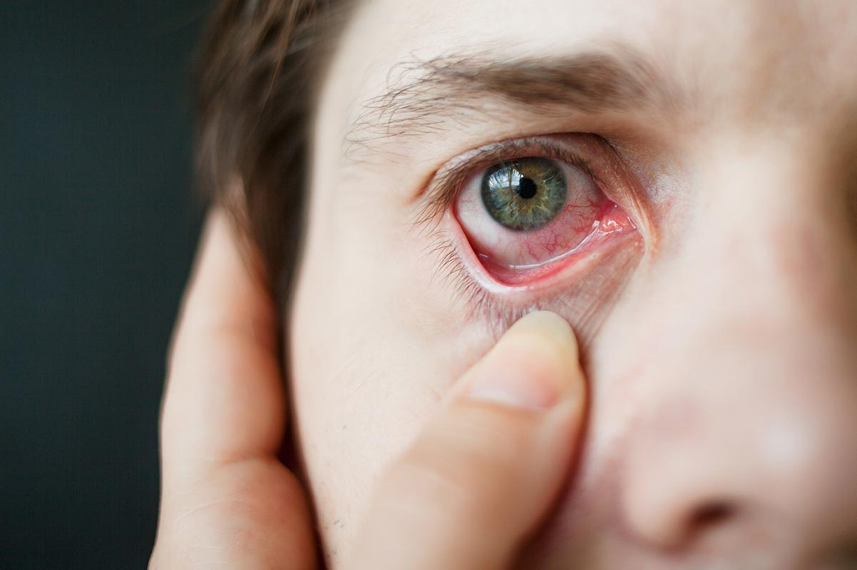 malattie autoimmuni dell'occhio.