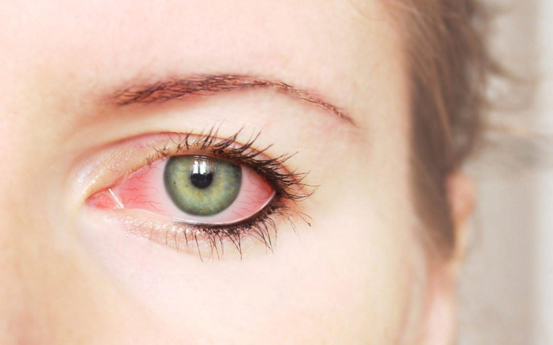 Occhi rossi e gonfi dopo l'esposizione al sole?