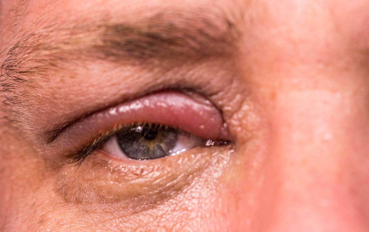 sintomi-orzaiolo
