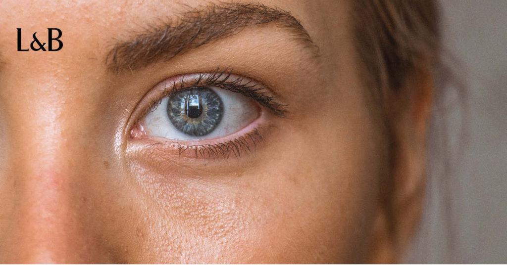 come bloccare la miopia